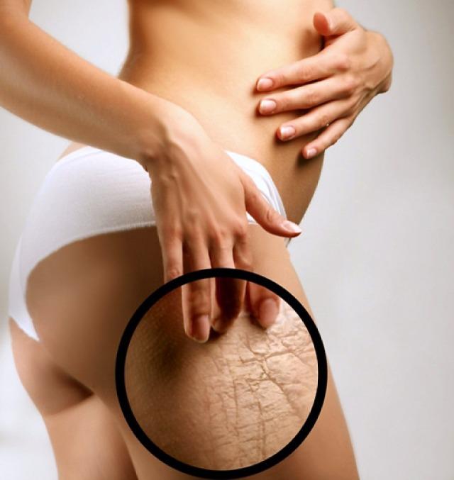 Chirurgia genitali maschili