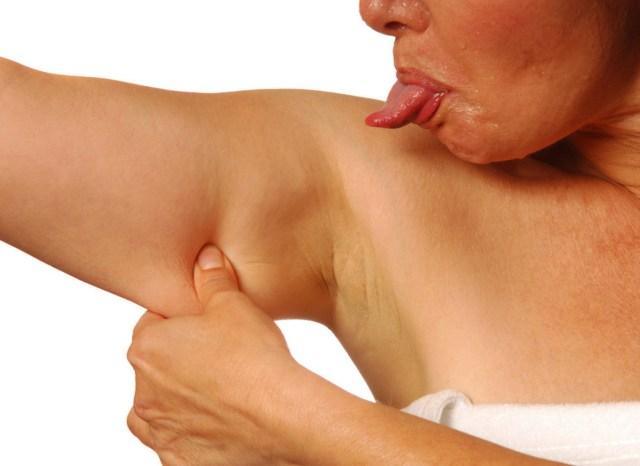 effetto tendina braccia medicina chirurgia estetica consigli