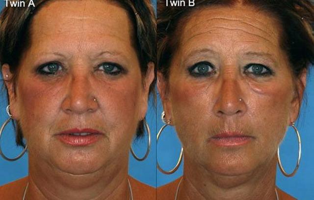 Queste donne sono due gemelle omozigote, quale delle due è una fumatrice?