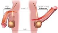 cause di erezione incontrollata