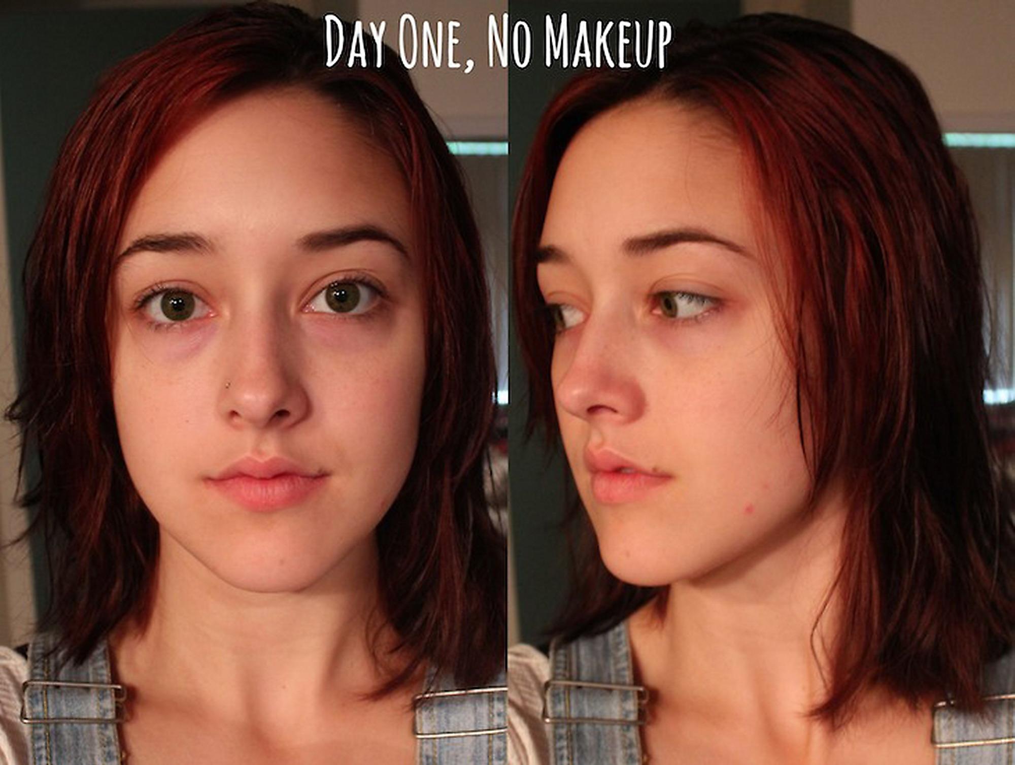 Datazione di un ragazzo con cicatrici da acne