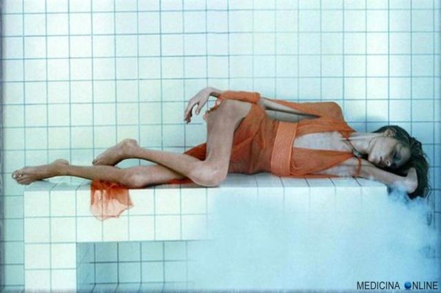 MEDICINA ONLINE ANORESSIA ANORESSICA ANOREXIA IMAGE IMMAGINI CORPO NON ESISTE PIU BULIMIA NERVOSA VOMITO OSSA DIMAGRIMENTO CIBO MANGIARE PSICHIATRIA DISTURBI DEL COMPORTAMENTO ALIMENTARE