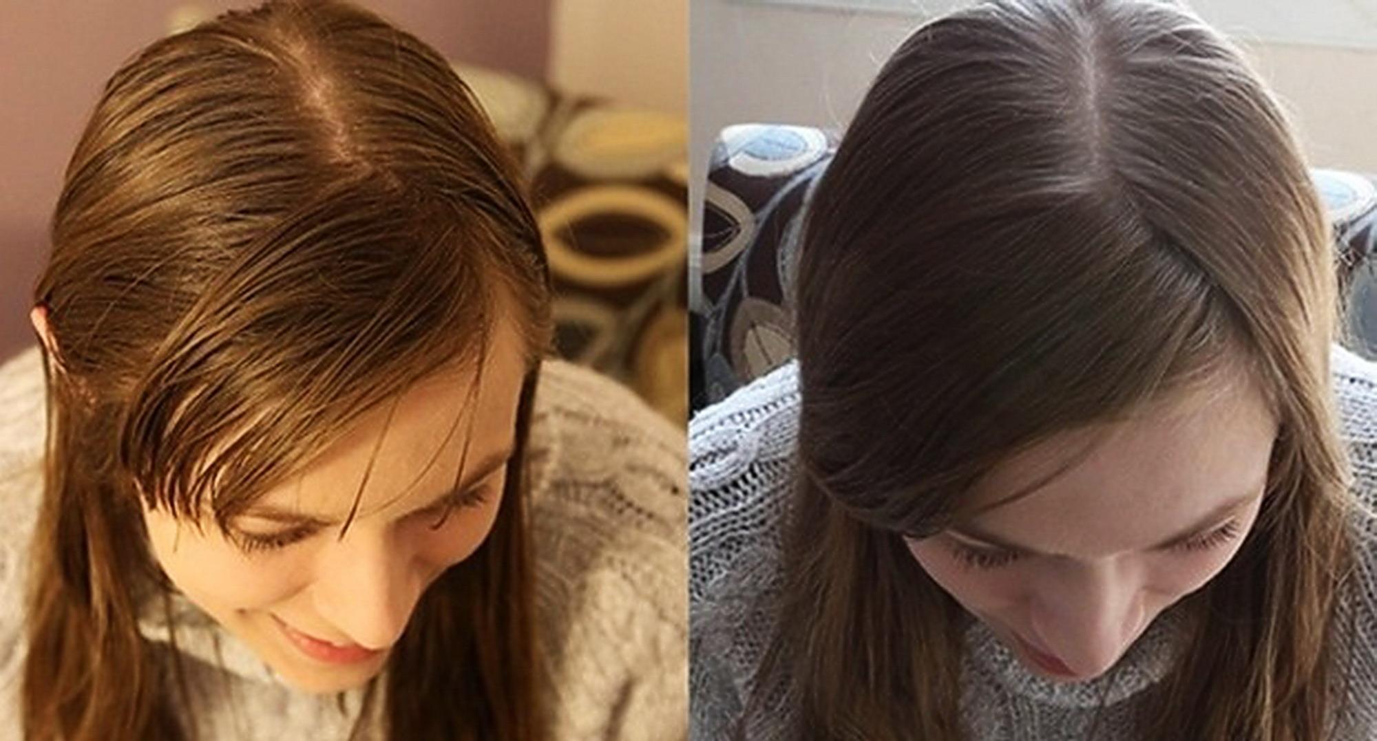Si lava i capelli senza shampoo per venti giorni  il risultato è ... 526683701be0