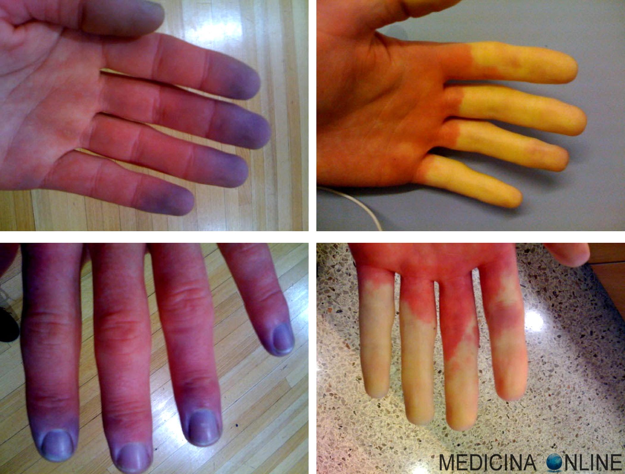 prostata ingrossata stanchezza dolori articolazioni macchie sulla mano del