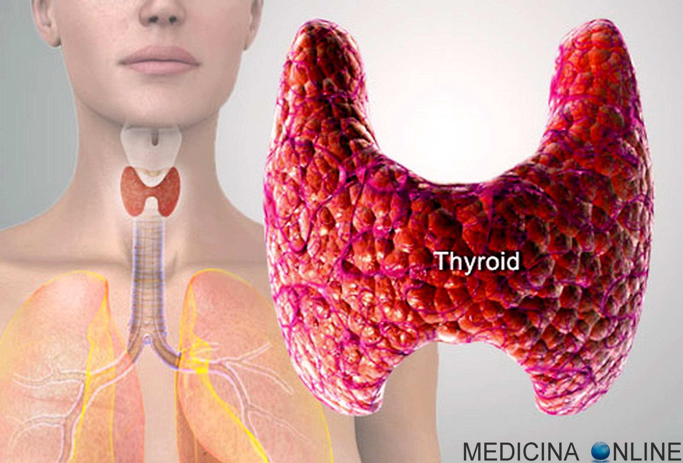 Tiroide - ipotiroidismo