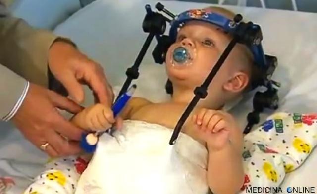 MEDICINA ONLINE Jackson Taylor decapitazione interna testa collo vertebre incidente operazione decapitato head.jpg