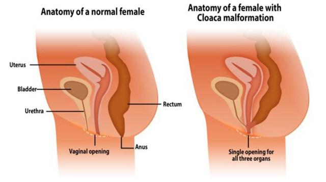 dolore alla prostata dopo il sesso anale