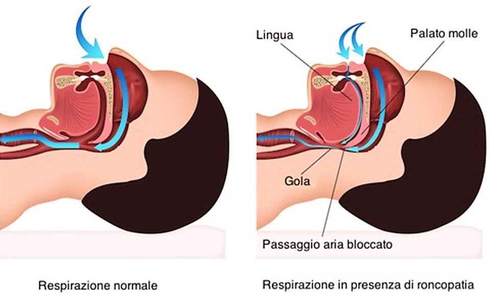 chirurgia laser della prostata con apnea notturna
