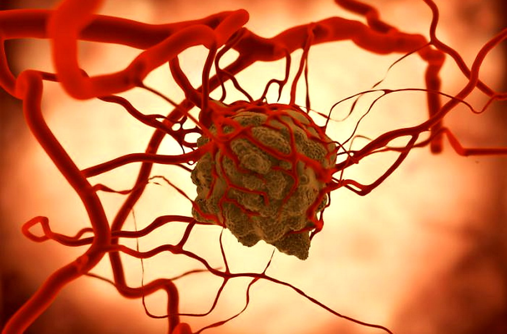 vendicare il trattamento avanzato del carcinoma prostatico