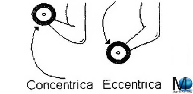 MEDICINA ONLINE CONTRAZIONE MUSCOLARE DINAMICHE ISOTONICA STATICHE ISOMETRICA AUXOTONICA PLIOMETRICA ISOCINATICA CONCENTRICA POSITIVA ECCENTRICA NEGATIVA PALESTRA ALLENAMENTO SCHEMA