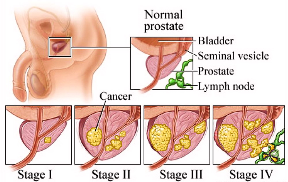 psa antigene prostatico specifico basso meaning