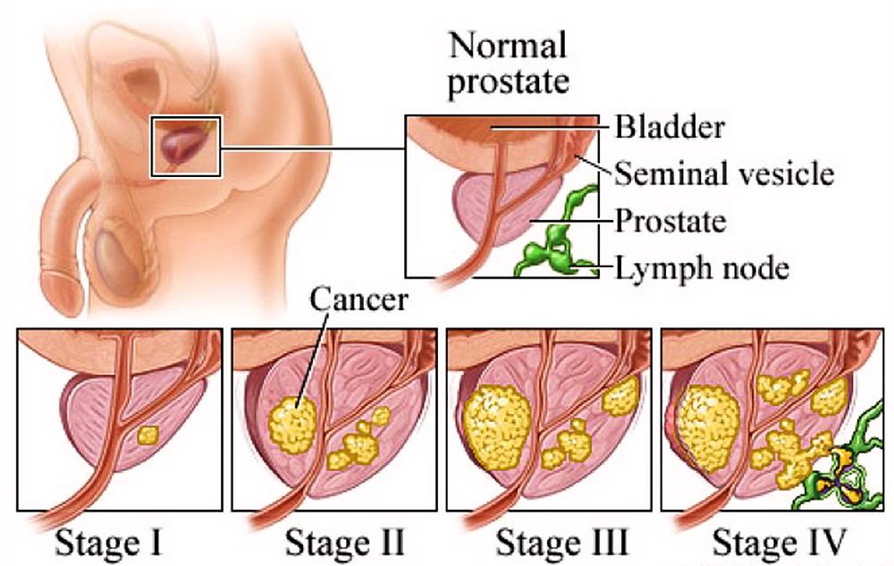 un sacco di guida può causare un ingrossamento della prostata