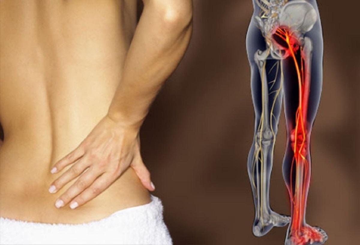 dolore pelvico e sciatalgia in menopausal