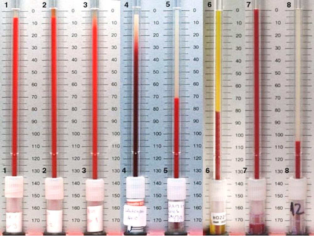 alimentos y bebidas prohibidas para la gota enfermedad acido urico gota tratamiento para gota fisioterapia