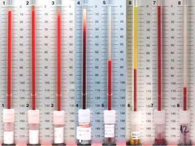 MEDICINA ONLINE Dott Emilio Alessio Loiacono Medico Chirurgo Roma VES ALTA BASSA CAUSE SINTOMI VALORI Riabilitazione Nutrizionista Medicina Estetica Cavitazione Radiofrequenza Ecografia Pulsata  Macchie Capillari Linfodrenaggio Pene Vagina.jpg