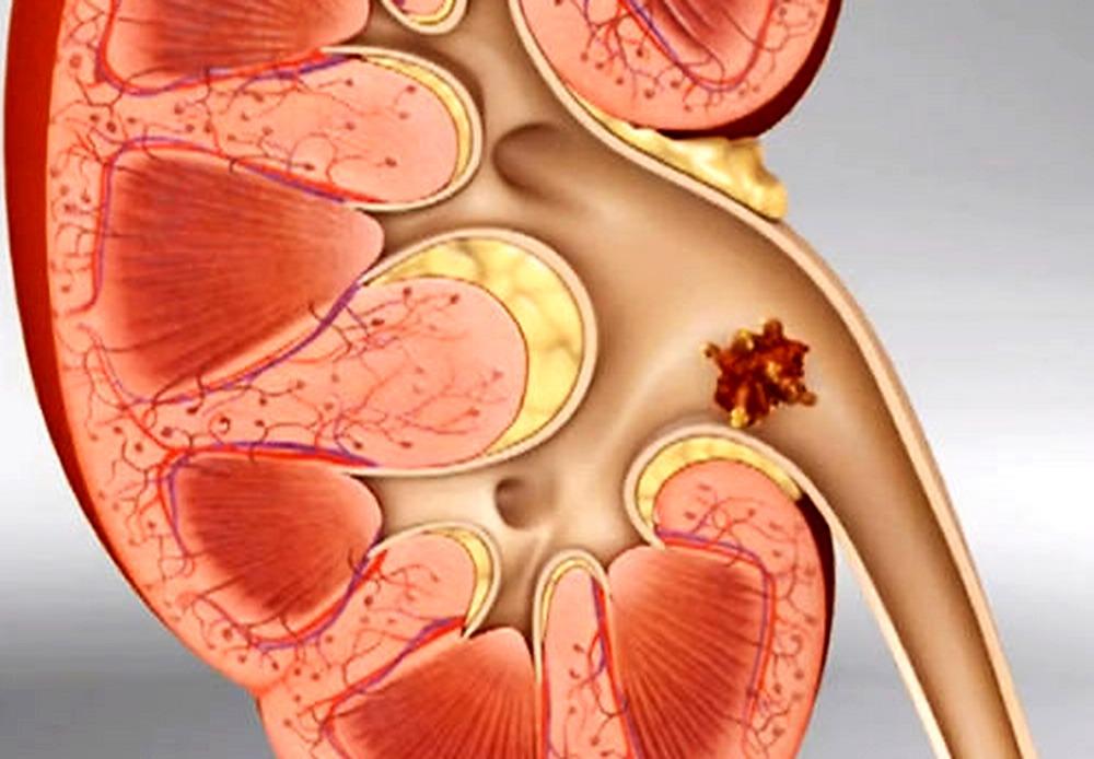 colica renale erezione