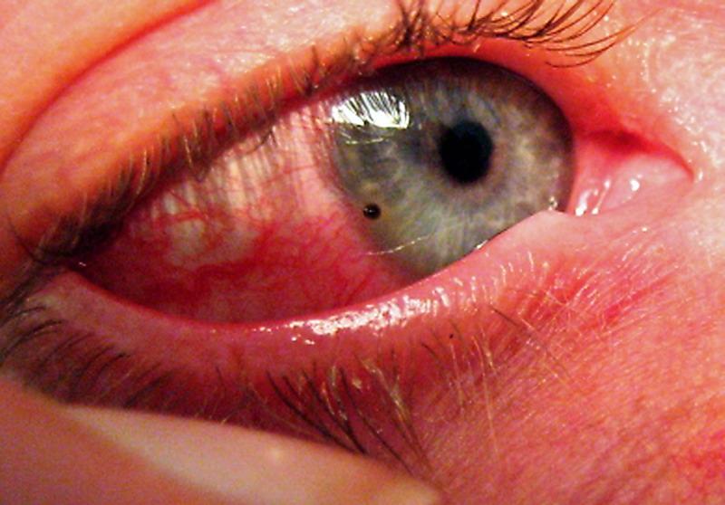 toxoplasmosis nell uomo da perdere l erezione
