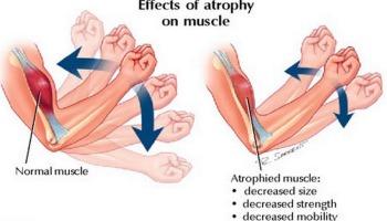 Debolezza muscolare alle gambe