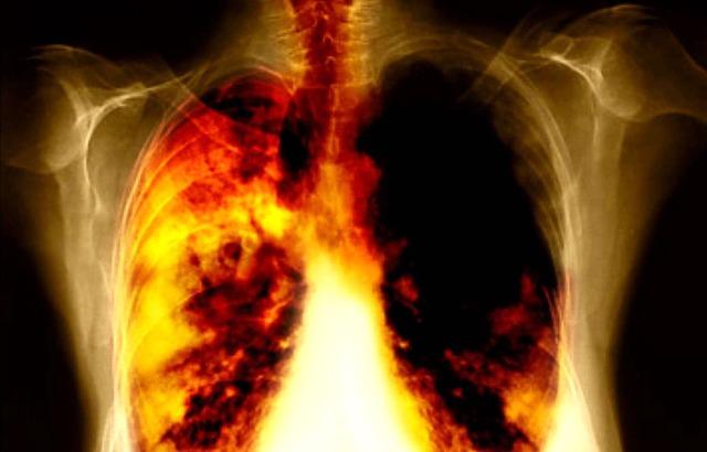 medicina-online-dott-emilio-alessio-loiacono-medico-chirurgo-roma-tumore-al-polmone-chi-non-fuma-da-cosa-e-causato-riabilitazione-nutrizionista-infrarossi-accompagno-commissioni-cavitazione-radiofreq