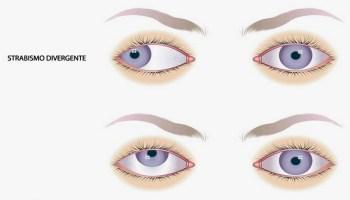 il botox può causare uninfezione agli occhi