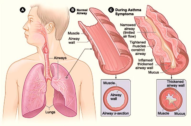 minzione frequente allinsufficienza cardiaca notturna