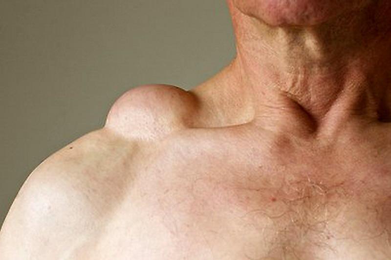 iniezioni di stomaco per carcinoma della prostata