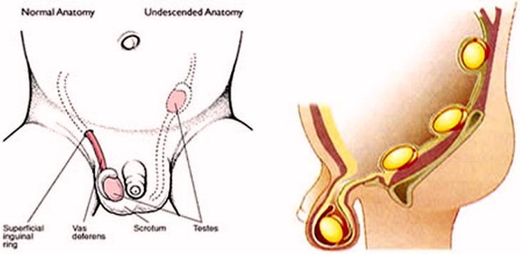 Sesso anale durante la ectopiche
