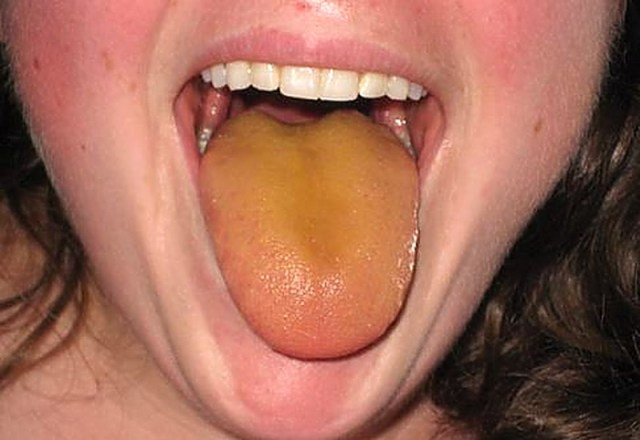 MEDICINA ONLINE LINGUA GIALLA ALITO CATTIVO MAL DI GOLA CAUSE RIMEDI YELLOW ORANGE TONGUE