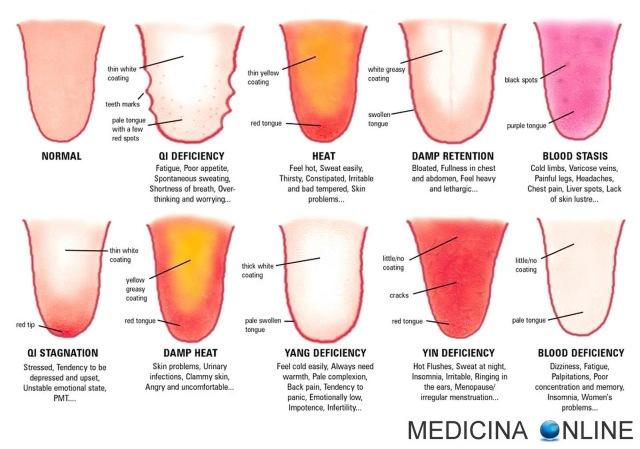 MEDICINA ONLINE LINGUA WHICH TONGUE ARE YOU NINE SYMPTOMS HEAT BLOOD DAMP DEFICIENCY CARATTERISTICHE COLORE PATINA BIANCA LINGUA NERA VERDE VILLOSA DOLORE BOCCA LABBRA MASTICARE MANGIARE WALLPAPER SFONDO PICTURE HD HI RES