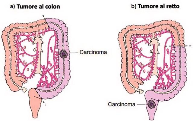 MEDICINA ONLINE TUMORE COLON RETTO ANO TRATTAMENTO CHIRURGICO INTESTINO RADIOTERAPIA CHEMIOTERAPIA CANCRO AMPUTAZIONE.jpg