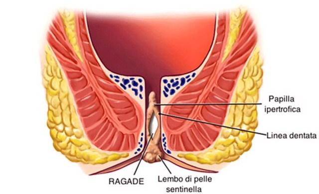 La consolidazione in dorso passa e il dolore grave