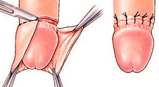 Pene: quanta differenza tra riposo ed erezione?