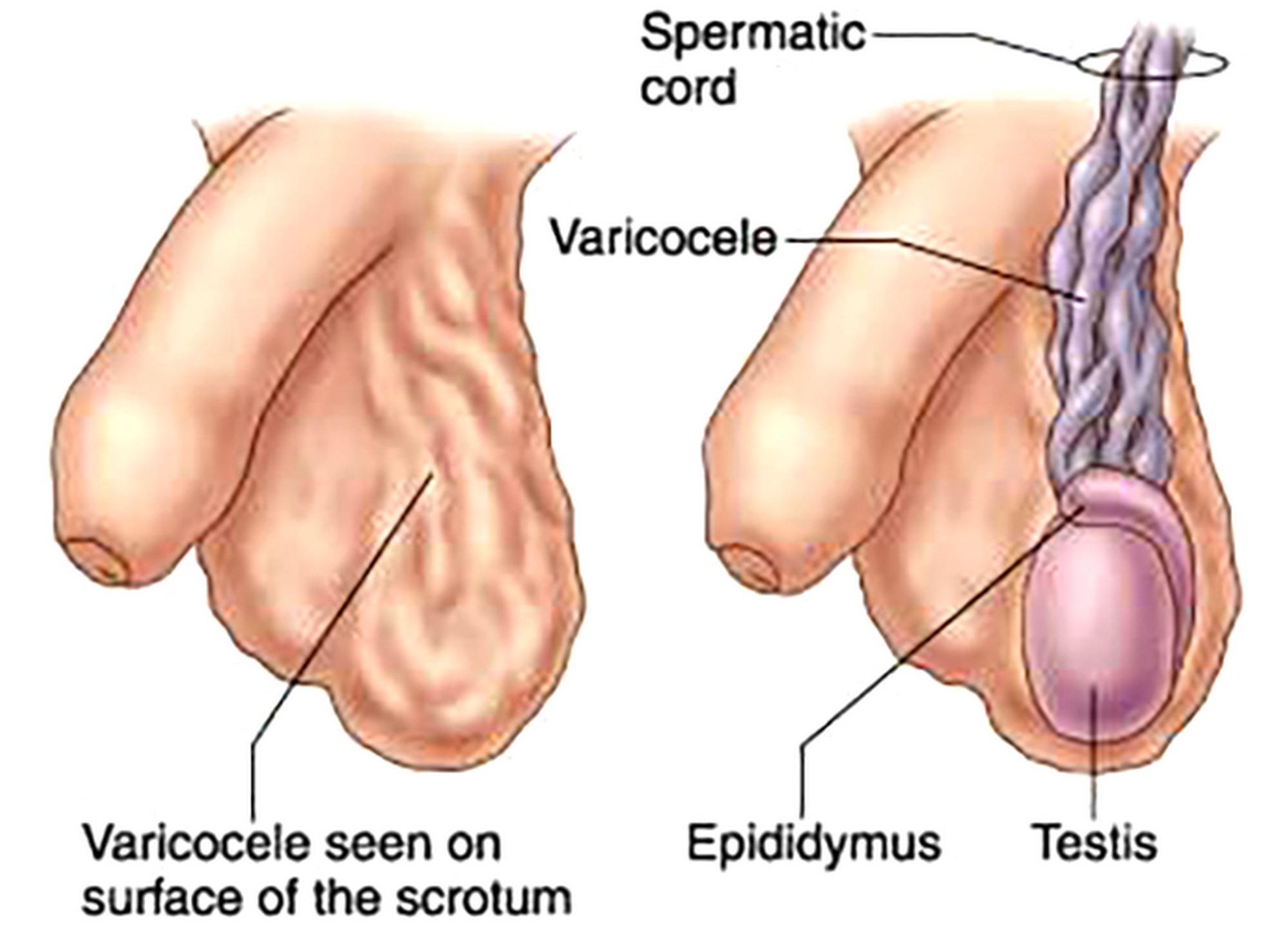 Dolore testicoli, problemi erezione