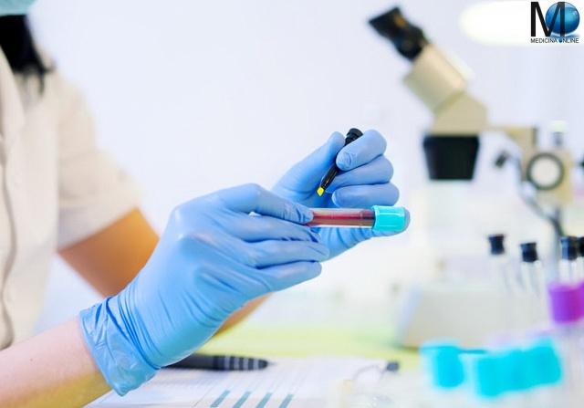 MEDICINA ONLINE BLOOD TEST EXAM ESAME DEL SANGUE ANALISI GLOBULI ROSSI BIANCHI PIATRINE VALORI ERITROCITI ANEMIA TUMORE CANCRO LEUCEMIA FERRO FALCIFORME MEDITERRANEA EMOGLOBINA