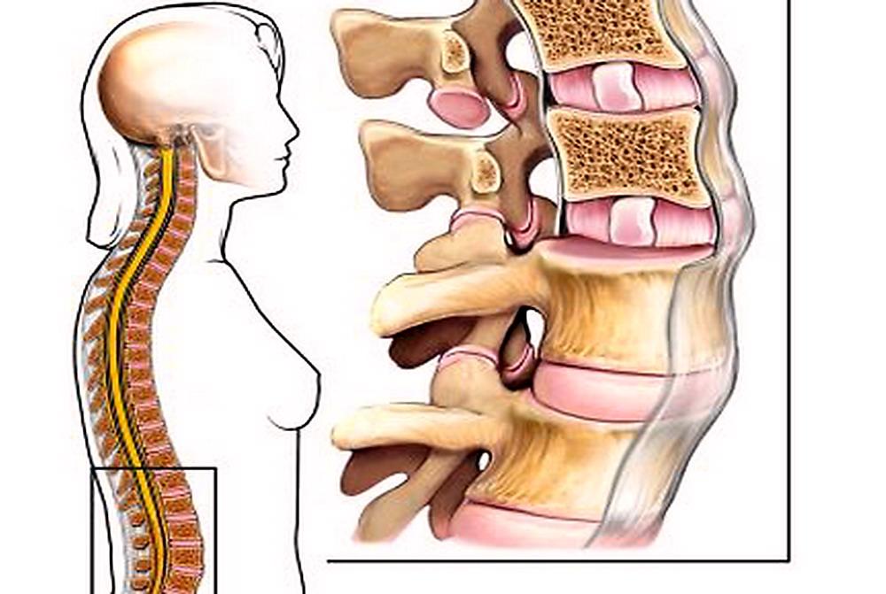 crollo vertebre lombari ed erezione