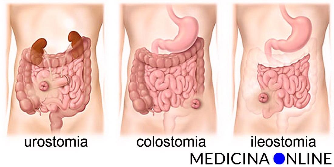 problemi erezione dopo colostomia