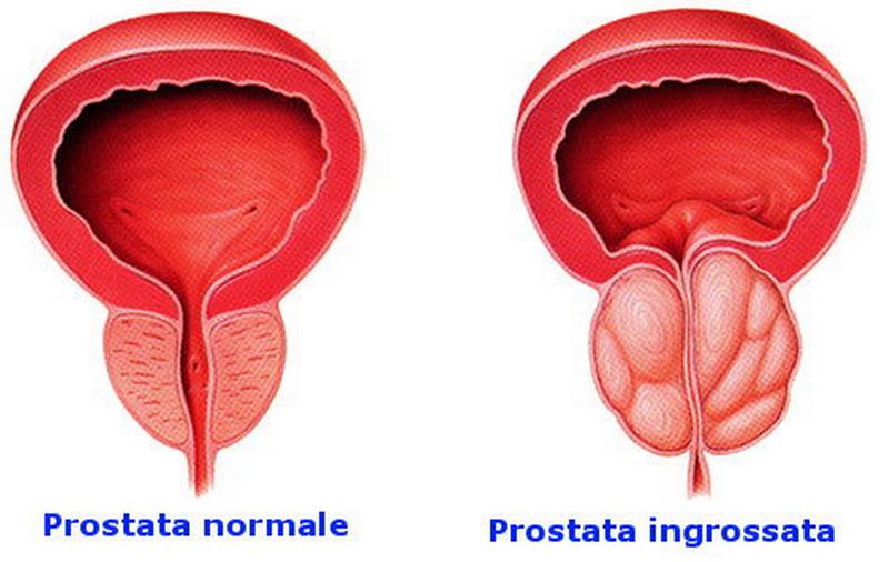 la prostata influenza la minzione?