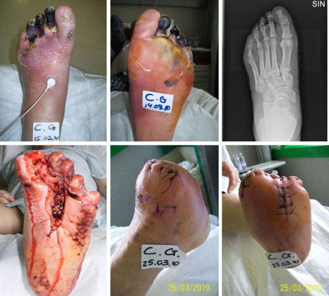 MEDICINA ONLINE DUODENO PANCREAS DIGESTIONE GLICEMIA DIABETE ANALISI INSULINA ZUCCHERO CARBOIDRATI CIBO MANGIARE DIETA MELLITO TIPO 1 2 CURA ULCERA DECUBITO PIEDE DIABETICO