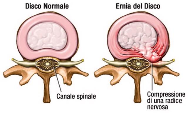 Ernia del Disco Lombare