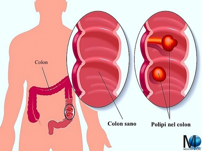 disfunzione erettile dopo chirurgia del cancro del colon-retto