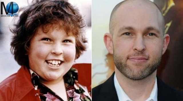 MEDICINA ONLINE GOONIES Jeff Cohen BEFORE AFTER NOW PICTURE PICS.jpg