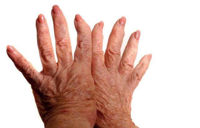 Differenza tra artrite reumatoide, artrosi e gotta, un elevato livello...