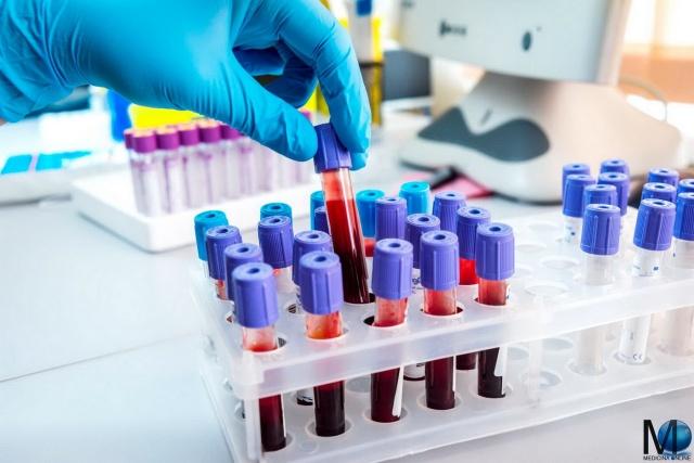 MEDICINA ONLINE LABORATORIO BLOOD TEST ESAME SANGUE ANALISI CLINICHE GLOBULI ROSSI BIANCHI PIATRINE VALORI ERITROCITI LEUCOCITI ANEMIA TUMORE CANCRO LEUCEMIA FERRO FALCIFORME MEDITERRANE