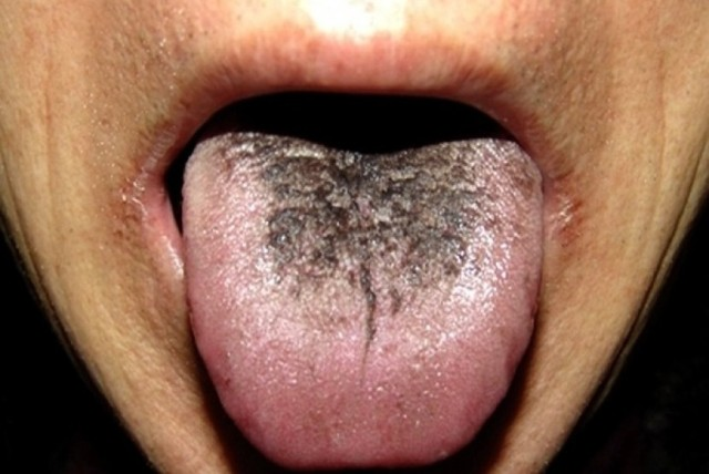 MEDICINA ONLINE LINGUA NERA VILLOSA CAUSE DIAGNOSI TERAPIE BLACK TONGUE