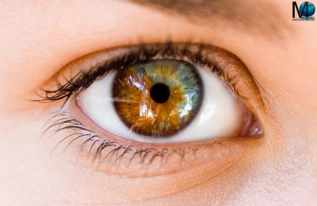 Gli occhi pi incredibili che abbiate mai visto grazie - Parole con due significati diversi ...