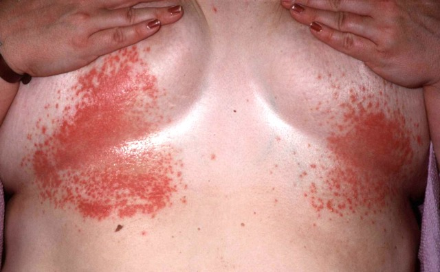 MEDICINA ONLINE ROSSORE IRRITAZIONE PELLE SOTTO PIEGA TRA SENO REDNESS RASH RED SKIN UNDER BREAST WOMAN RIMEDI CURE TERAPIA.jpg
