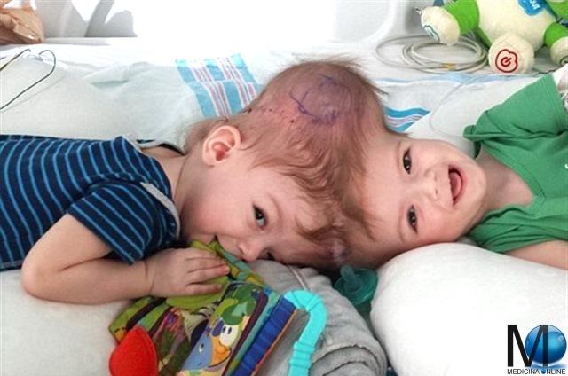MEDICINA ONLINE SIAMESE TWINS 18 novembre 2016 i gemelli Anias and Jadon McDonald (di 13 mesi) vengono separati al Montefiore Medical Center nel Bronx.
