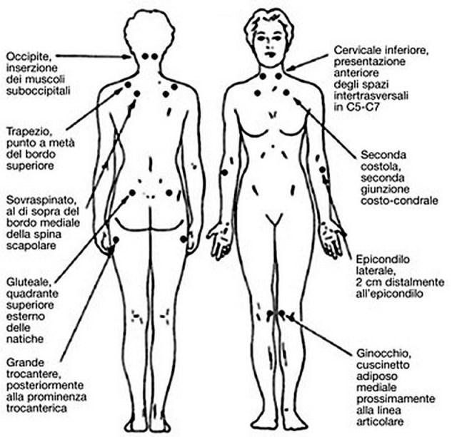 MEDICINA ONLINE TENDER POINTS FIBROMIALGIA ANATOMIA.jpg