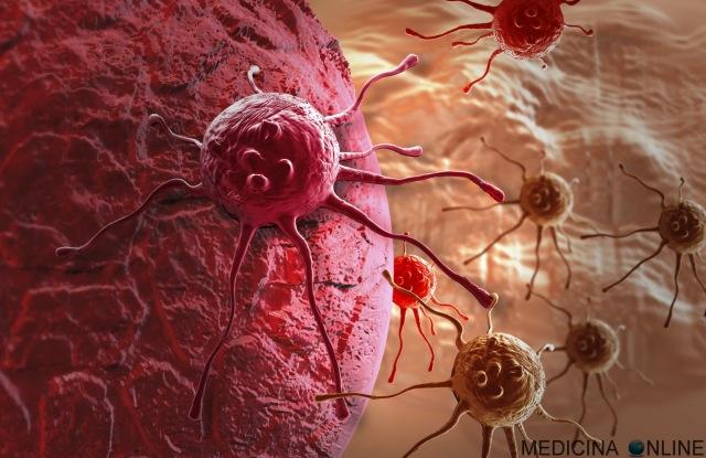MEDICINA ONLINE TUMORE TUMOR CANCRO CANCER CELL CELLULA LEIOMIOMA TESSUTO OSSA MAMMELLA SENO TESTICOLO POLMONE METASTASI DIFFUSIONE STADIAZIONE LINFONODO SENTINELLA WALLPAPER