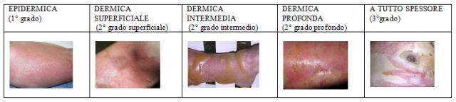 MEDICINA ONLINE USTIONE PRIMO SECONDO TERZO GRADO 1 2 3 TIPI.png